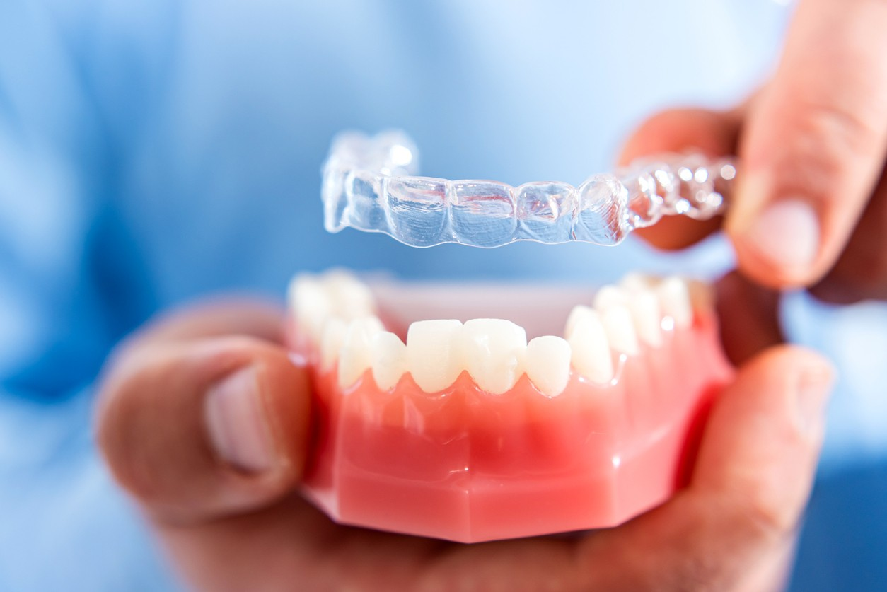 Invisalign: What is day-to-day life like with this new orthodontic treatment?